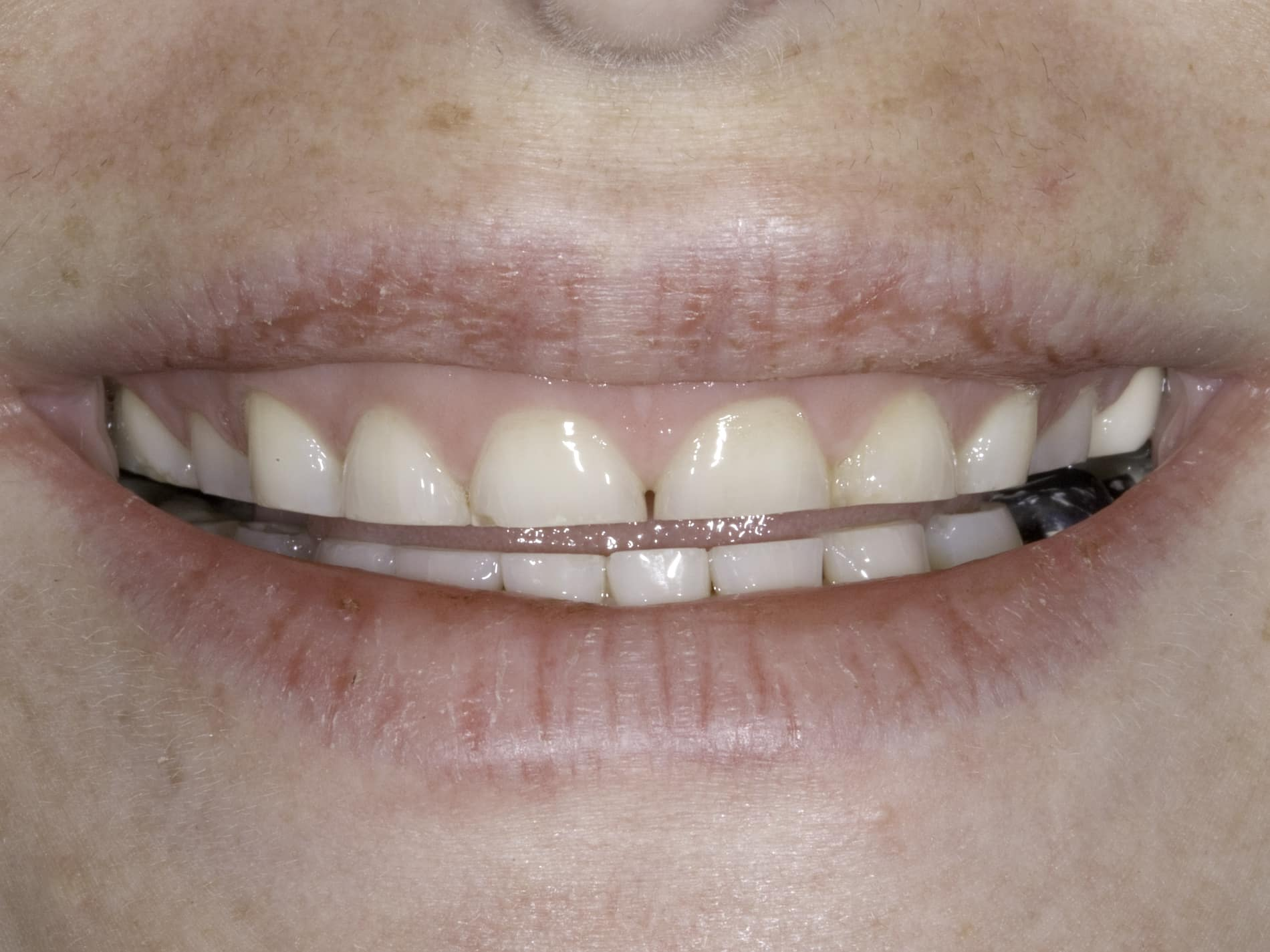teeth grinding hypnosis clinic perth